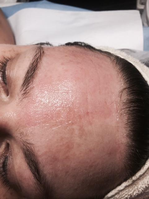 stora porer kinder