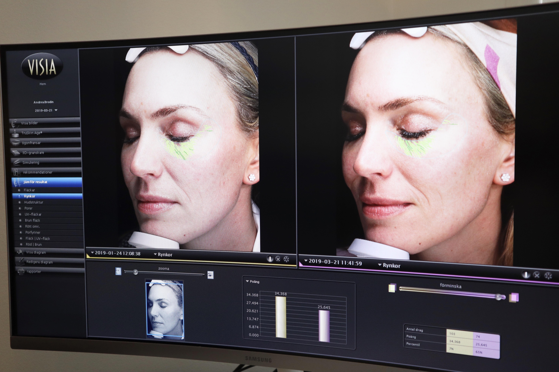 Oslo Skin Lab Flashback
